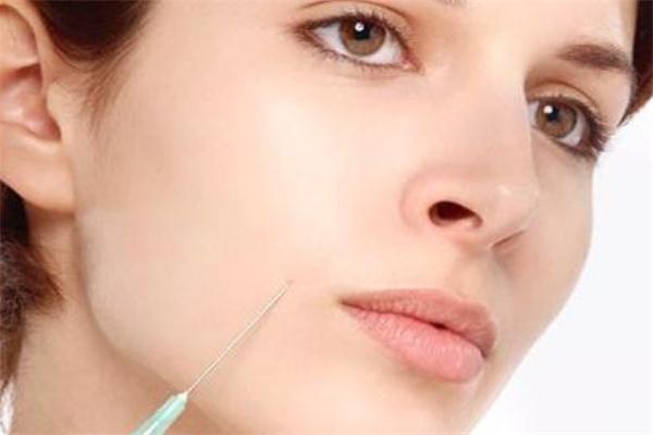 玻尿酸填充鼻唇沟要几只 玻尿酸丰鼻唇沟打多少
