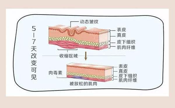 肉毒素除皱原理