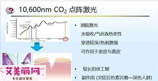 CO2点阵激光优势