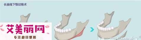 长曲线下颌角截骨实现精致V脸
