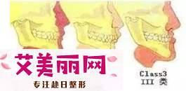 天生地包天、下巴后缩?正颌手术就能帮你拥有好看侧颜|颧骨是哪个部位