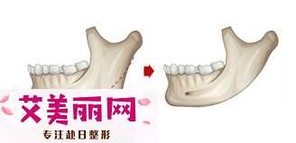 下颌角整形手术痛吗