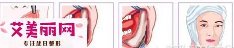 你知道磨骨和削骨有什么区别吗?