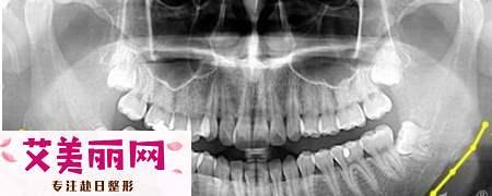 下颌角整形会影响咀嚼能力?|颧骨内推戴了一年的头套
