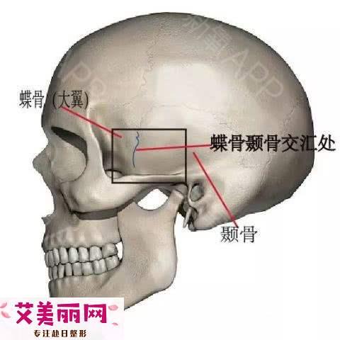 颧骨内推和面部填充区别在哪?