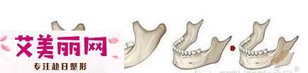 为变美她们做颧骨内推和下颌角整形的同时也做了面部吸脂