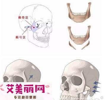 35岁做下颌角颧骨内推手术安全吗?