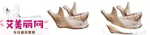 下颌角磨骨术多久恢复?
