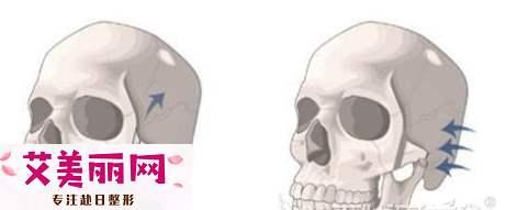 改善颧骨高用磨骨和颧骨内推哪种手术效果好?