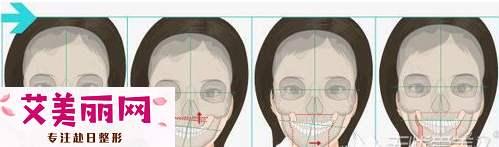 大小脸造成的下颌角歪斜一般需要做什么手术解决?