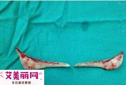 磨骨手术截取下来的下颌角可以移植到下巴上吗?