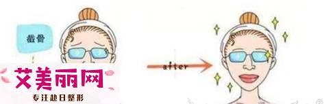 下颌角过宽选择哪种手术方式好?做完后会不会反弹?|颧骨内推后遗症