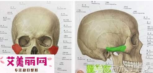 千万别再混淆了 颧弓内推和颧骨降低还是有这些区别|颧骨一高一低睡哪边
