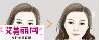 下颌角手术能改善四方脸吗?|颧骨内推要多少钱