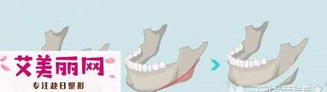 长曲线下颌角和T字截骨有什么区别?