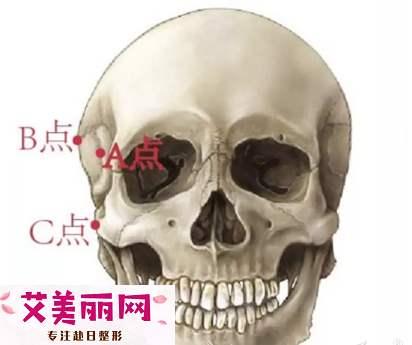 面部颧骨颧弓宽?究竟选填充太阳穴还是颧骨内推?