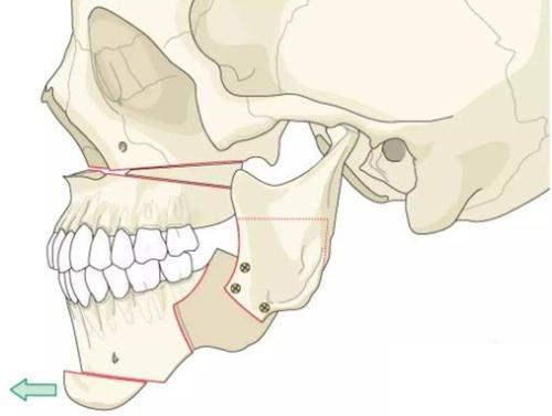 你可能不知道的磨骨手术的详细过程