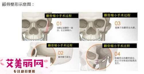 做轮廓整形后取出钛钉会不会导致脸下垂?