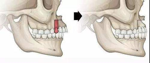 凸嘴还是龅牙?你了解吗