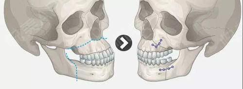 为什么选择做双颚手术?