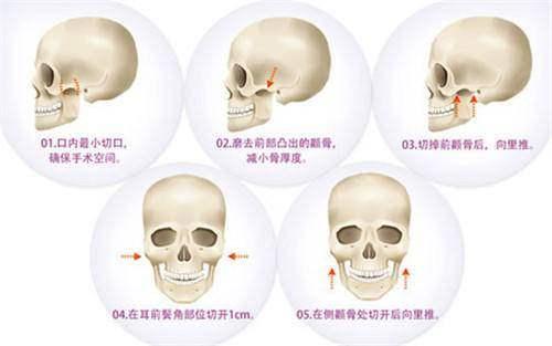 颧骨内推会导致面部下垂吗?