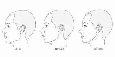 下颌角手术需要留角吗?
