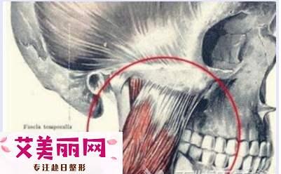 下颌角整形会影响咀嚼能力?