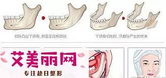 做下颌角手术的同时可以去除咬肌吗?