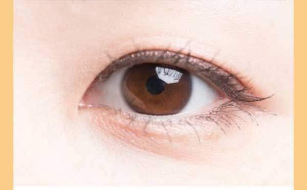单眼皮变双眼皮的方法有哪些?