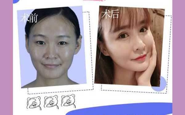 双眼皮的手术方法是什么?