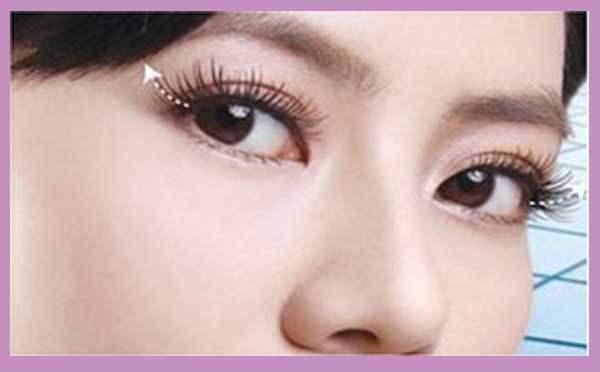 双眼皮的手术方法