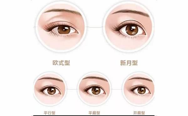 双眼皮类型
