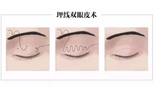 埋线双眼皮手术过程!