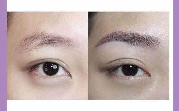 双眼皮太宽的原因是什么?
