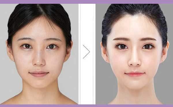 如何解决双眼皮太宽的问题