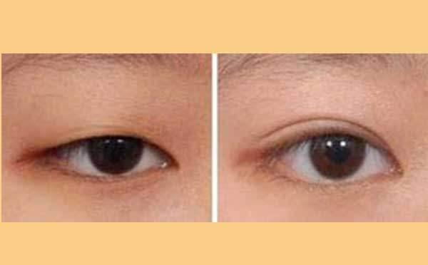 韩式三点微创法双眼皮