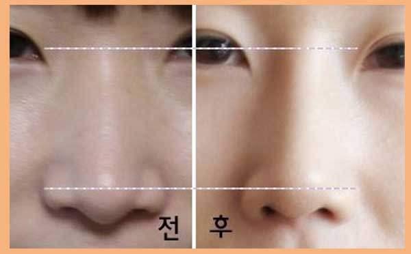 鼻翼缩小术