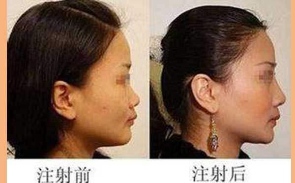 隆鼻手术方法不正确