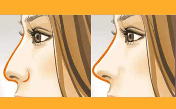 鼻小柱延长手术是怎么做的?