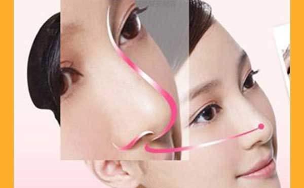 如何确保鼻小柱延长手术的永久效果?
