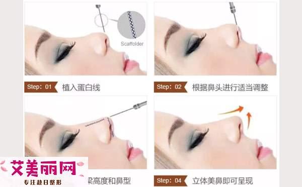 线雕隆鼻原理