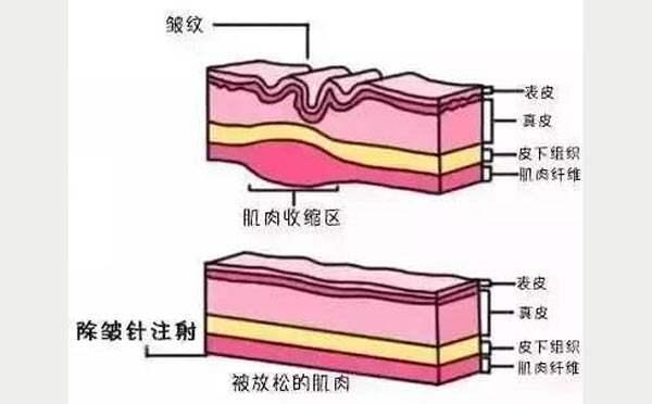 玻尿酸除皱原理