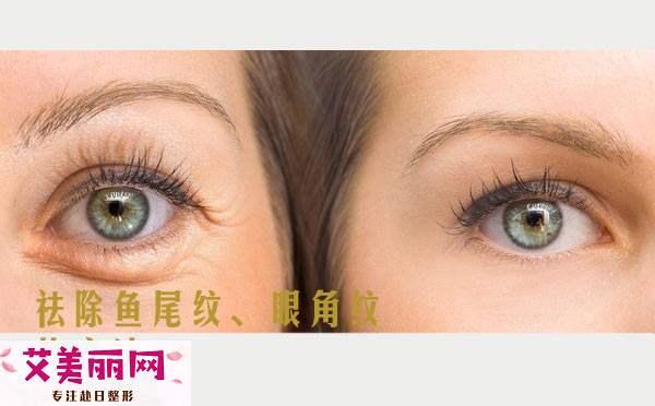 怎样去除眼角皱纹和鱼尾纹?