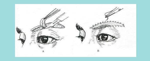 切眉祛除鱼尾纹过程