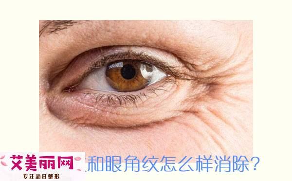 鱼尾纹和眼角纹怎么样消除?