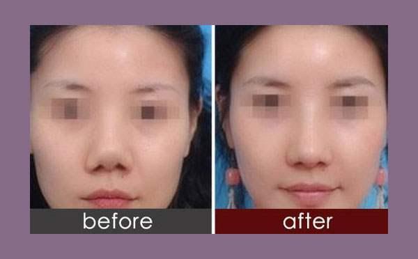 隆鼻手术究竟是什么呢?