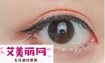 蕾丝双眼皮贴的缺点有哪些 隐形方便又快捷
