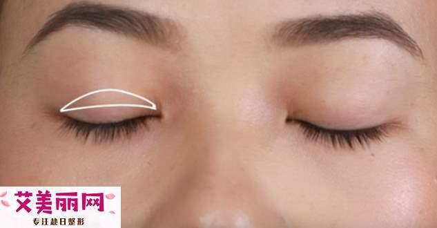 怎么贴双眼皮好看呢 内双应该怎么贴双眼皮呢