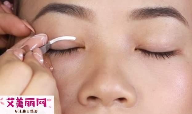 双眼皮纤维条怎么用 教你堪比动手术的方法