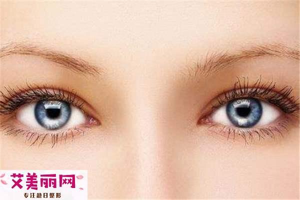 双眼皮可以重修眼头吗 四种双眼皮重修状况解析